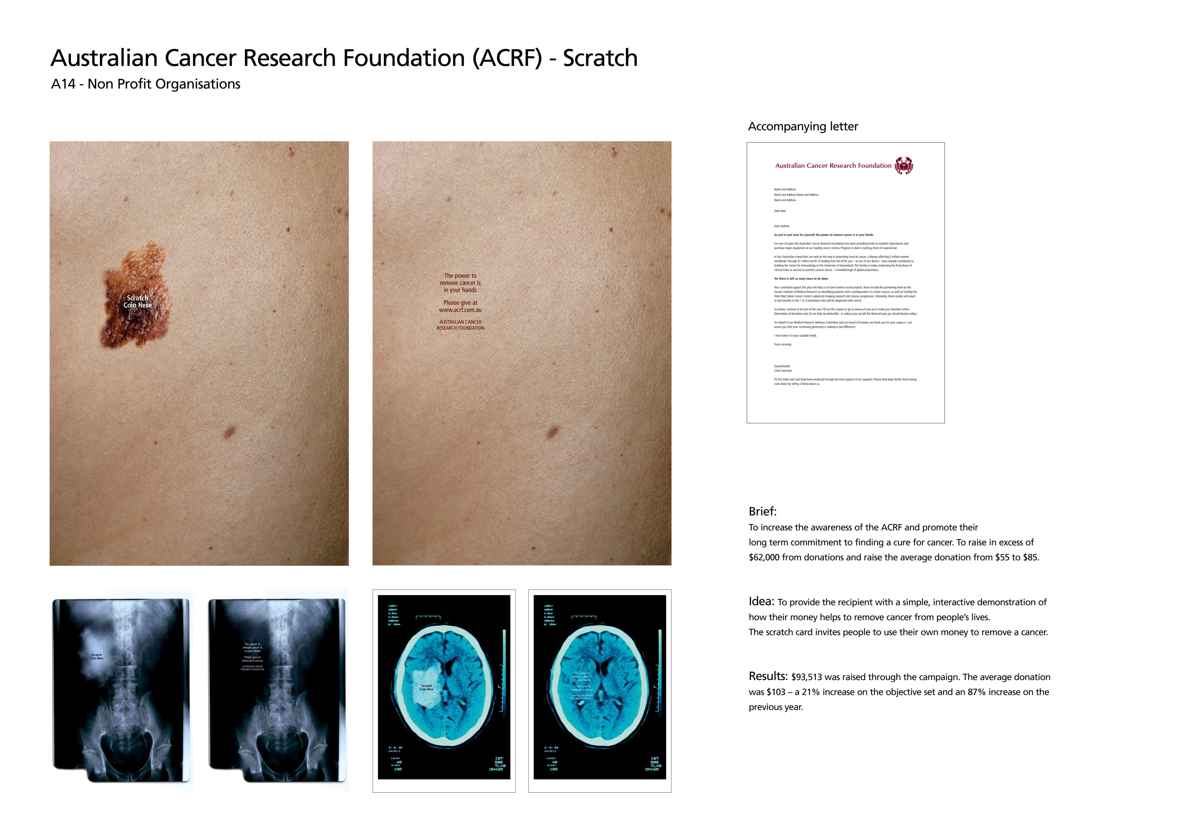 cancer cure research paper Research began promptly in an effort to find a faster way to eradicate the tumor completely scientists found that cancers have a protection around the this newly discovered treatment is a promising new step in the fight against cancer since this time the fda has given this possible cure the designation.